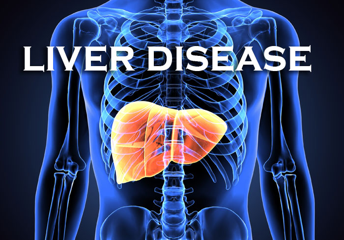 Introduction to a New Series: Liver Disorders
