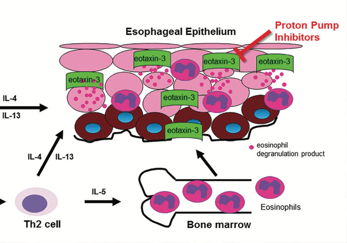 Eosinophilic Esophagitis: When to Suspect and Why to Treat with Proton Pump Inhibitor