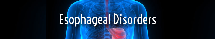 Esophageal