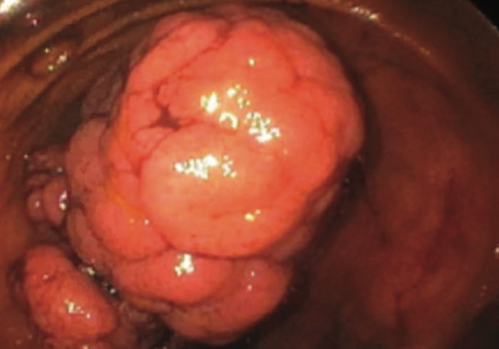 A Case of Small Bowel Intussusception in an Adult