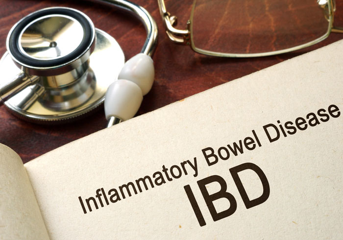Infection Risk Among Elderly with Inflammatory Bowel Disease