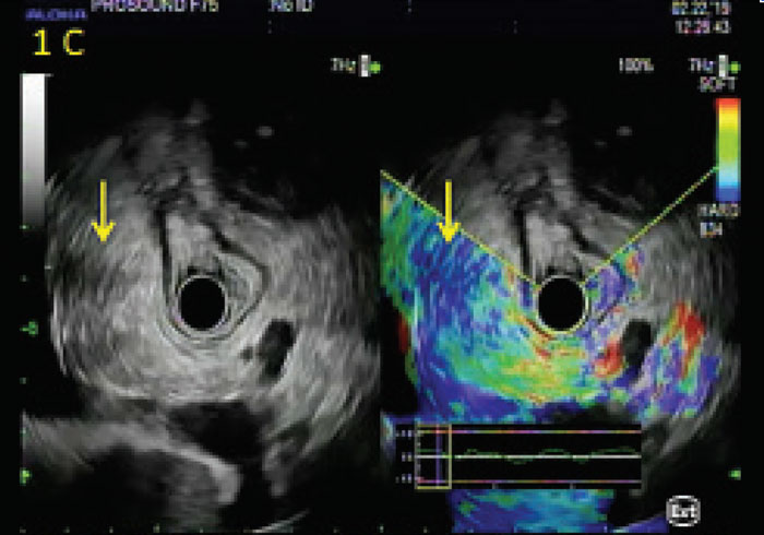 Endoscopic Ultrasound Elastography: An Emerging Clinical Tool